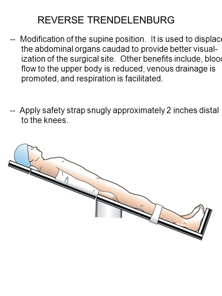 REVERSE TRENDELENBURG -- Modification of the supine position. It is used to displace the abdominal organs caudad to provide better visual- ization of
