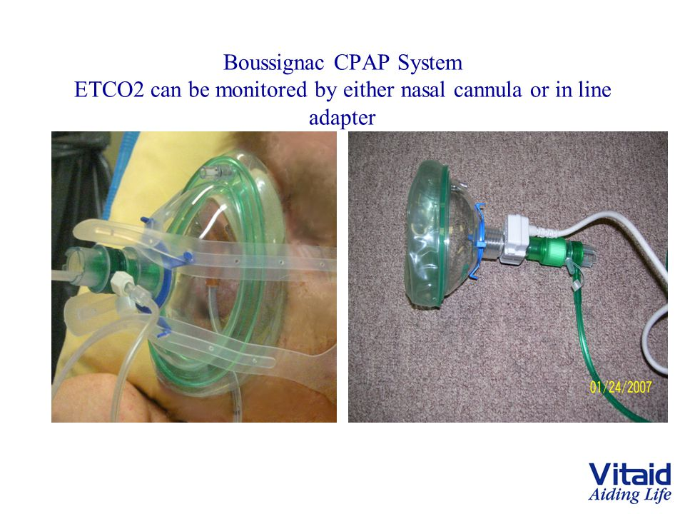 Boussignac CPAP System ETCO2 can be monitored by either nasal cannula or in line adapter CO 2 can be monitored with either a nasal cannula or an in-li