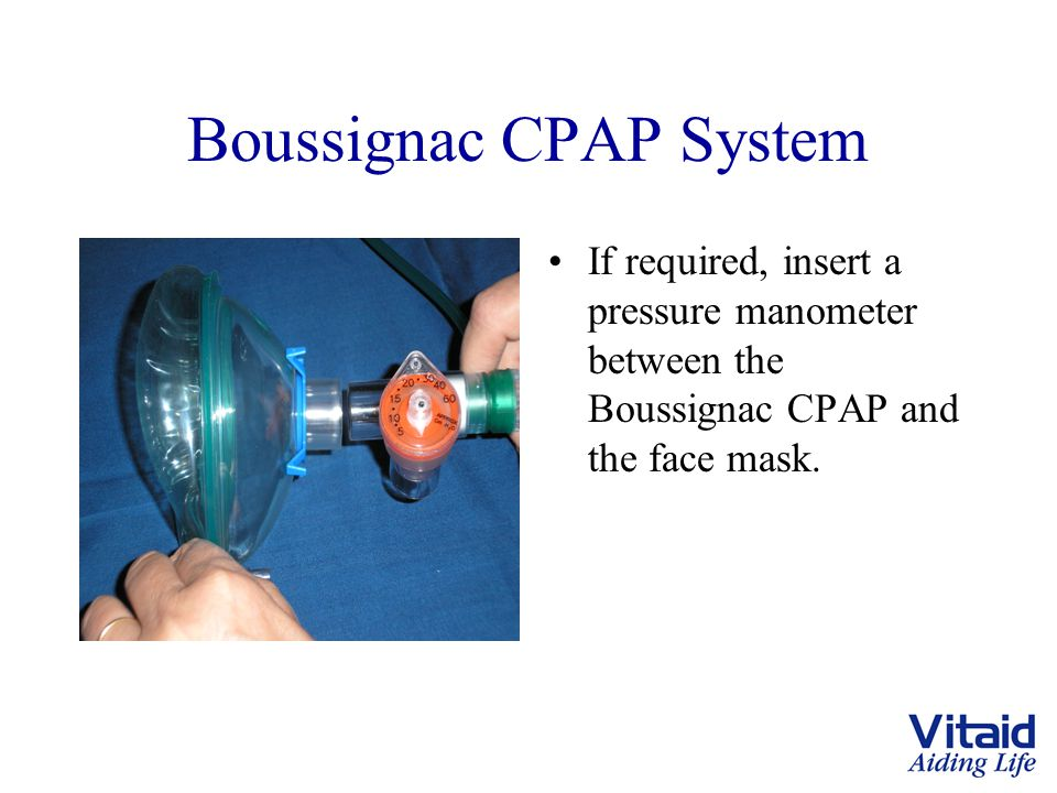 Boussignac CPAP System If required, insert a pressure manometer between the Boussignac CPAP and the face mask.