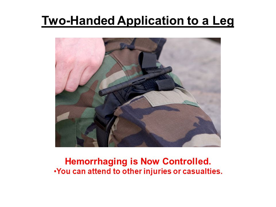 Hemorrhaging is Now Controlled. You can attend to other injuries or casualties.