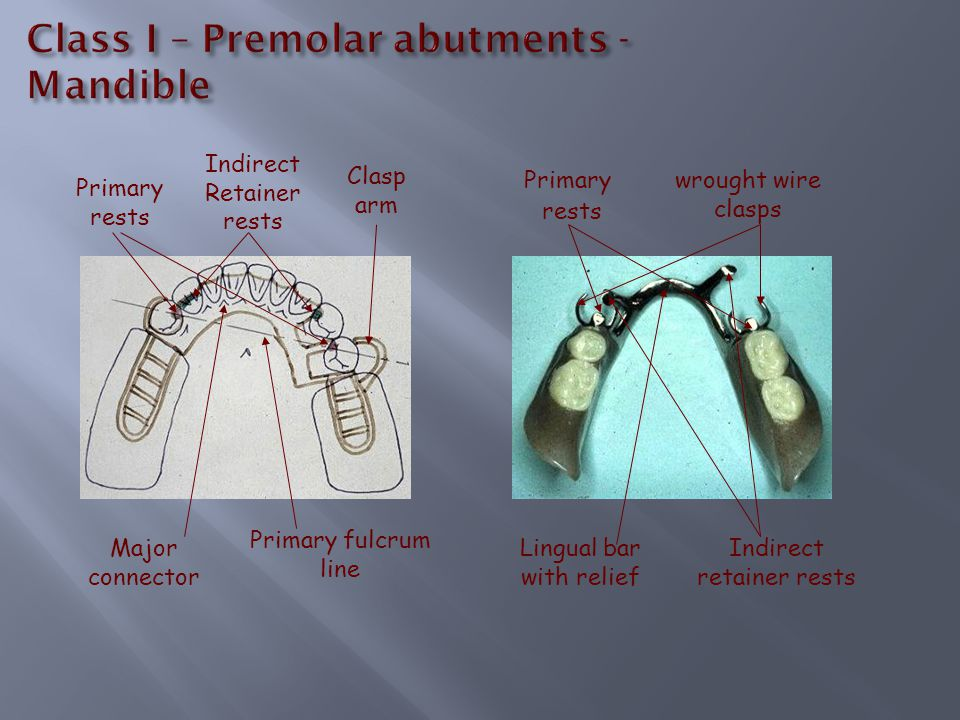 Primary fulcrum line Primary rests Indirect Retainer rests Clasp arm Major connector Primary rests wrought wire clasps Indirect retainer rests Lingual