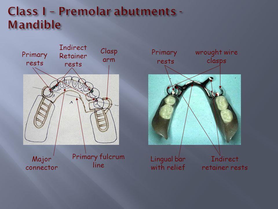 Class 3-A-P - Maxillary Anterior Palatal Strap or Open Horseshoe major connector to circumvent the palatal torus