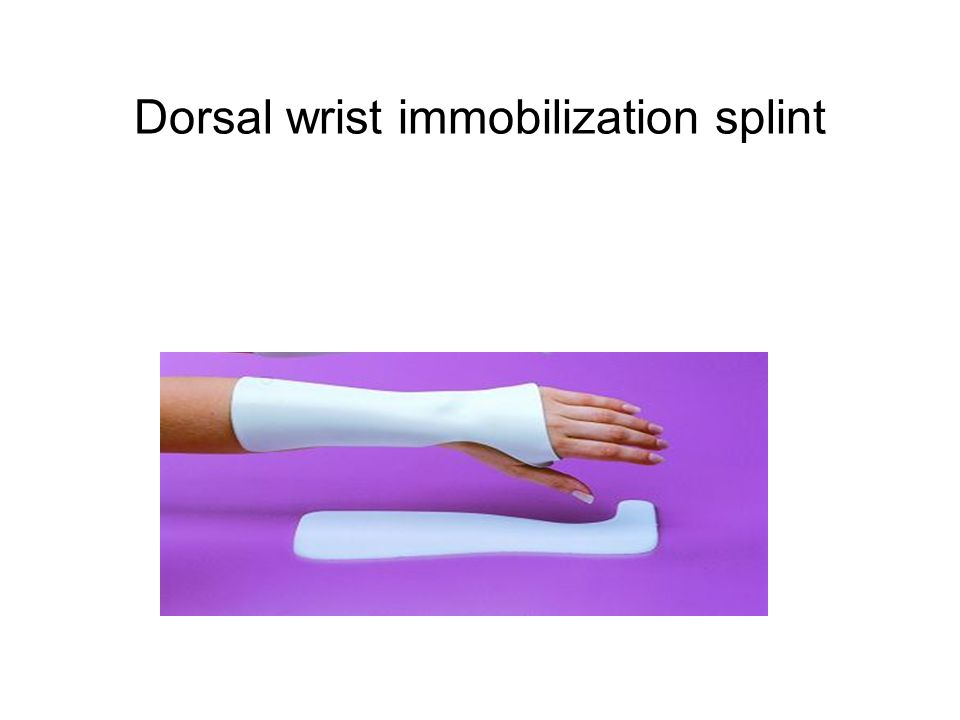 Wrist splints for sprains WIS help people with grade 1 and II sprains Grade 1: 3 weeks, grade II: 6 weeks This splint helps the hand during the acute healing phase and removes stress form the healing ligament