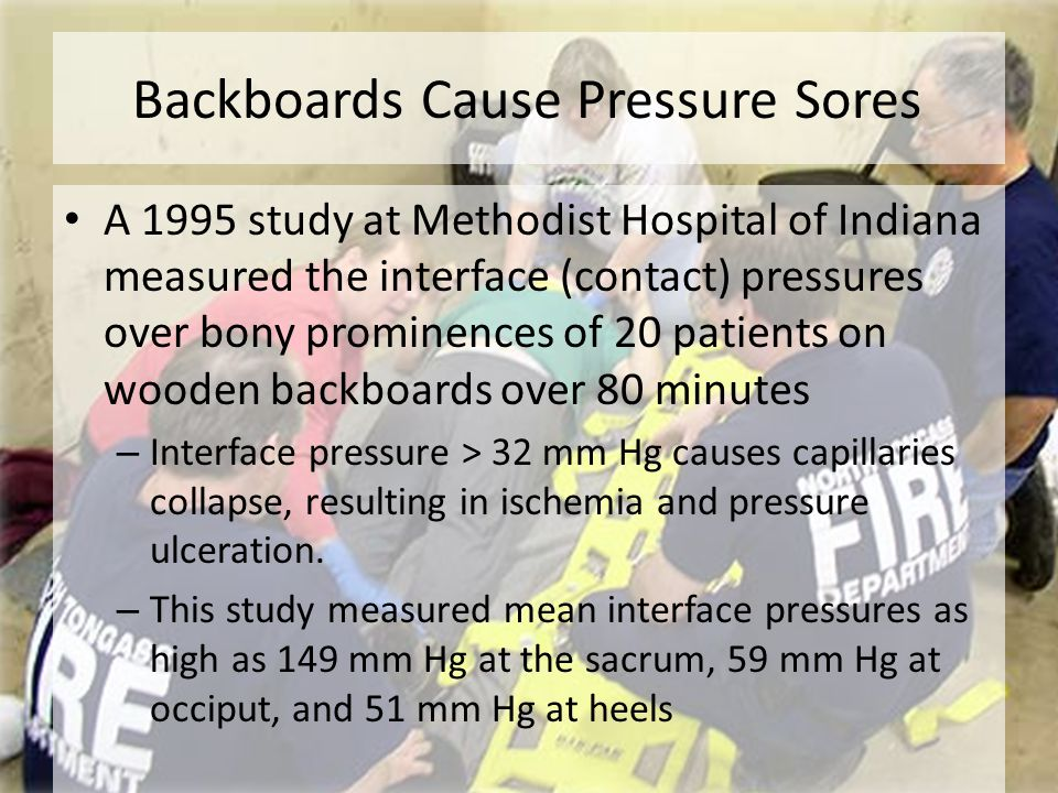 Backboards Cause Pressure Sores A 1995 study at Methodist Hospital of Indiana measured the interface (contact) pressures over bony prominences of 20 p