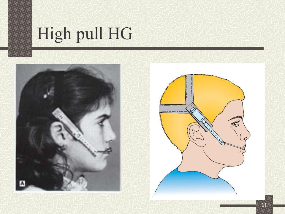 11 High pull HG