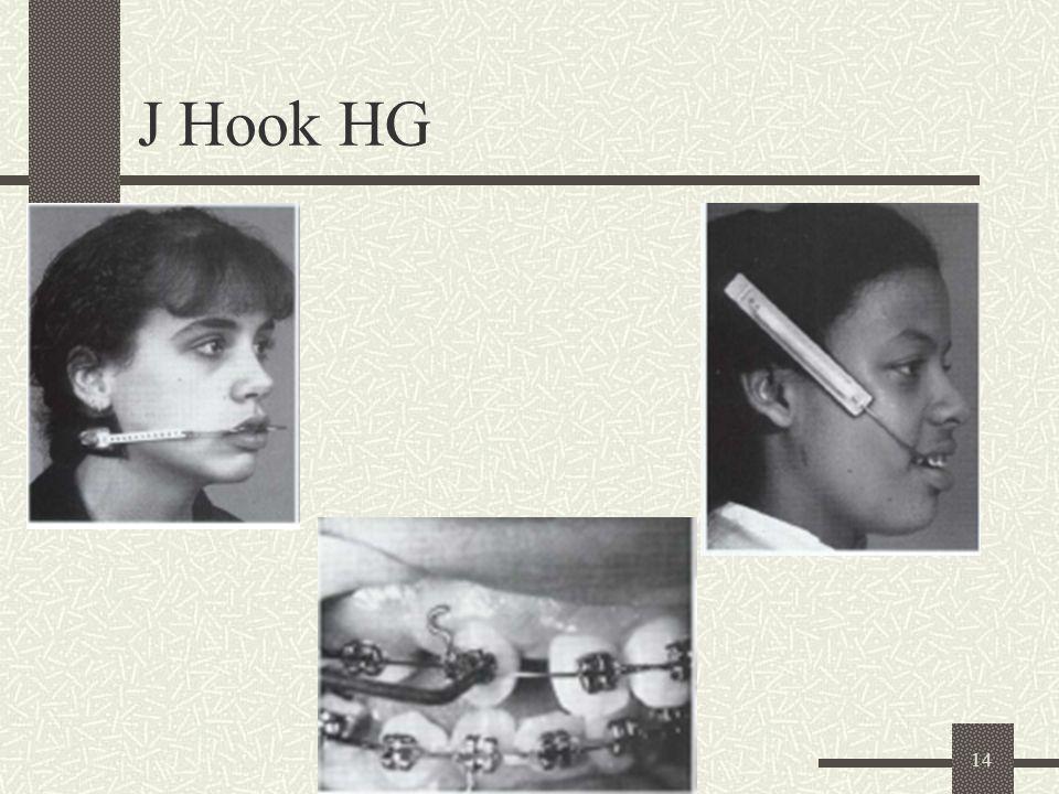 14 J Hook HG
