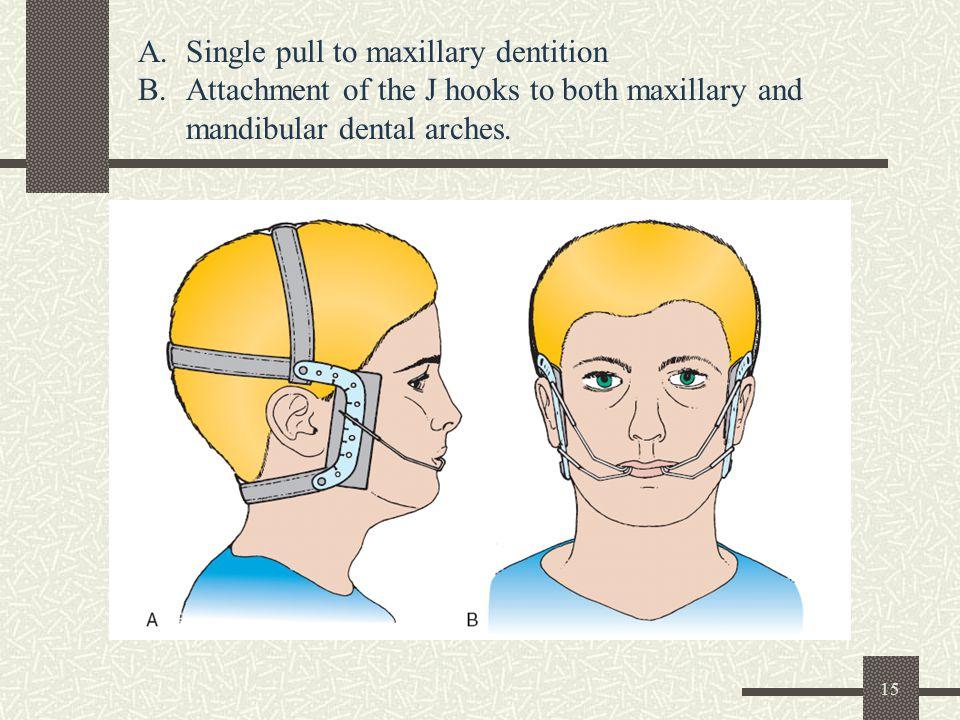 15 A.Single pull to maxillary dentition B.Attachment of the J hooks to both maxillary and mandibular dental arches.