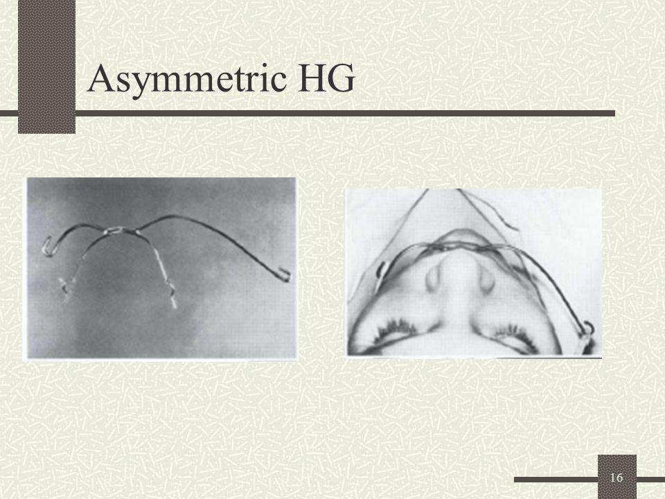16 Asymmetric HG