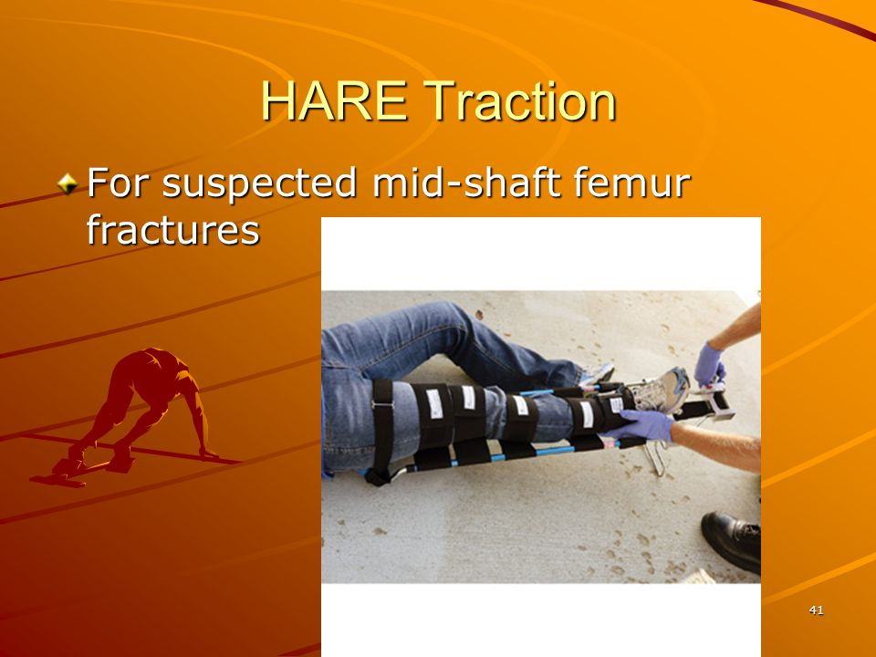 41 HARE Traction For suspected mid-shaft femur fractures