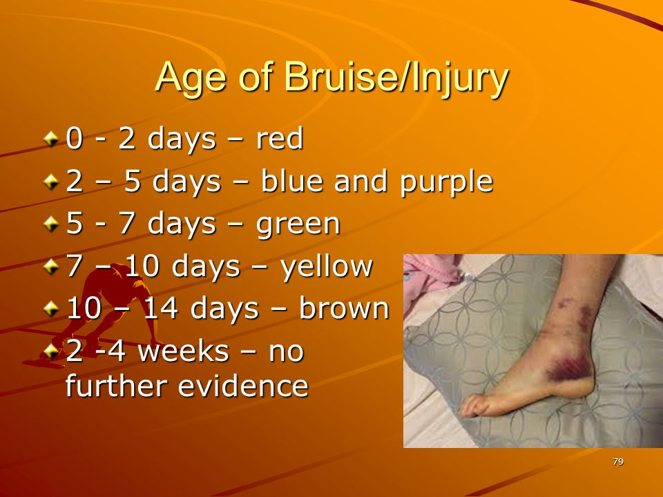 79 Age of Bruise/Injury 0 - 2 days – red 2 – 5 days – blue and purple 5 - 7 days – green 7 – 10 days – yellow 10 – 14 days – brown 2 -4 weeks – no fur