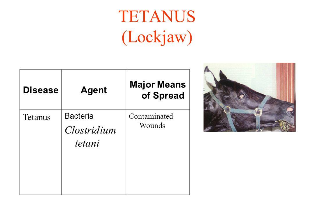 TETANUS (Lockjaw) DiseaseAgent Major Means of Spread Tetanus Bacteria Clostridium tetani Contaminated Wounds
