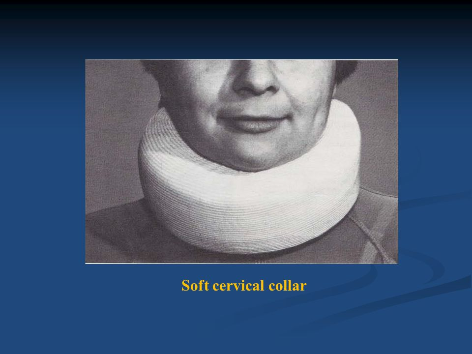 ( A) Anterior view: (B) Posterior view:Patient wearing soft cervical collar and clavicular strap.