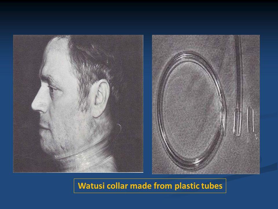 Watusi collar made from plastic tubes
