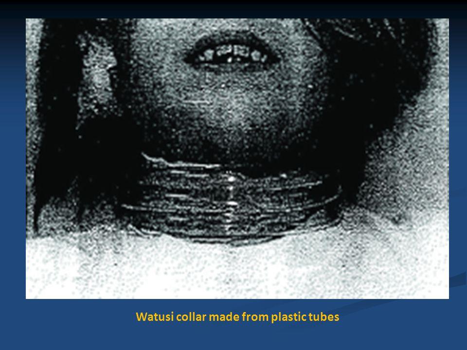 Philadelphia collar used for positioning neck