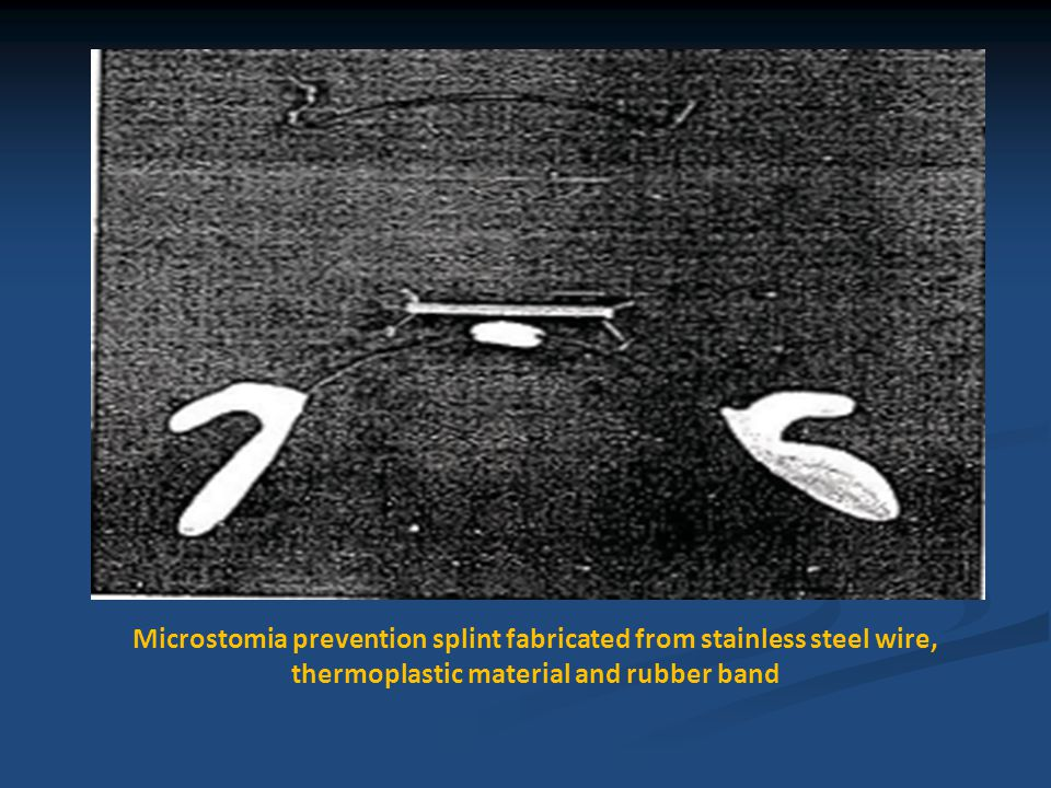Microstomia prevention splint fabricated from stainless steel wire, thermoplastic material and rubber band