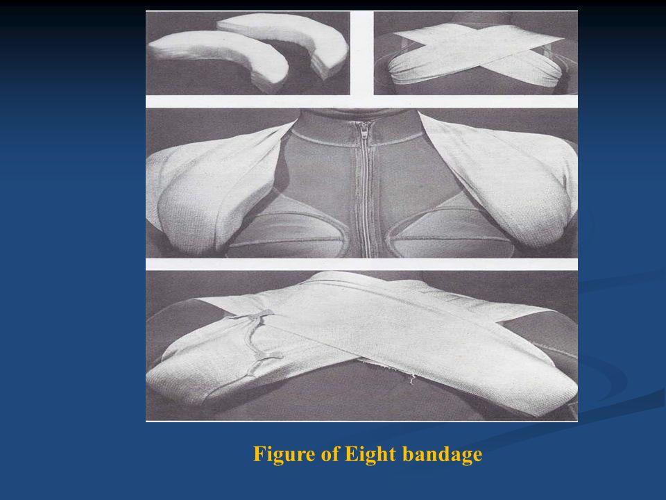 Figure of Eight bandage