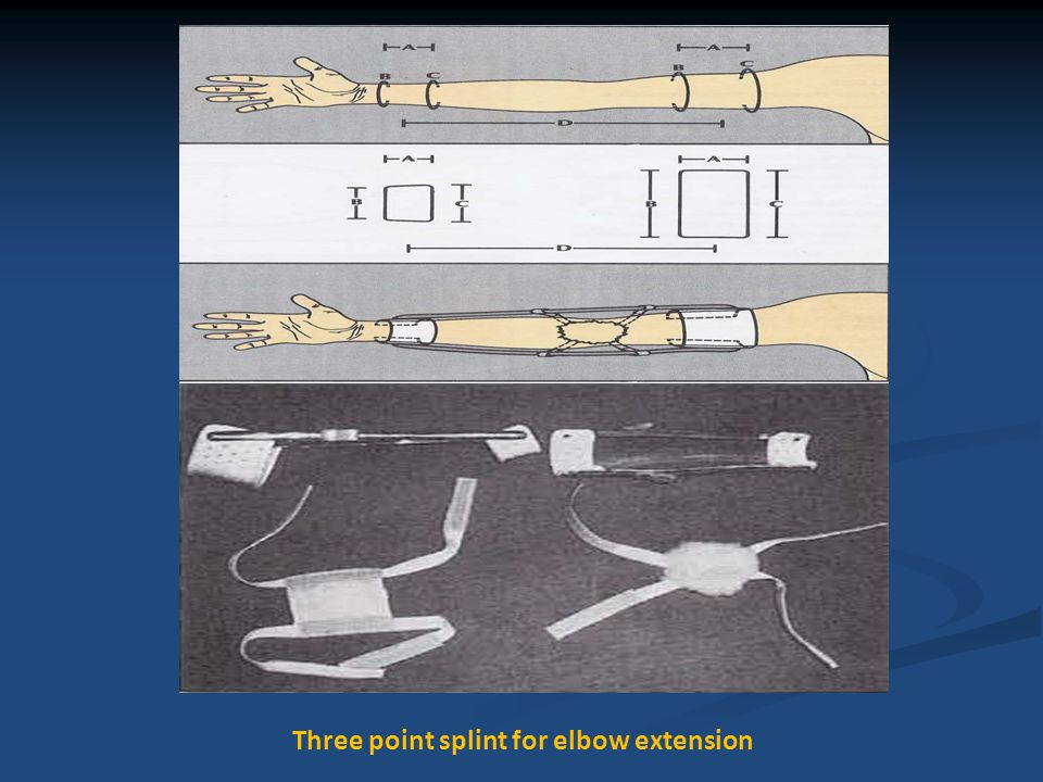 Three point splint for elbow extension