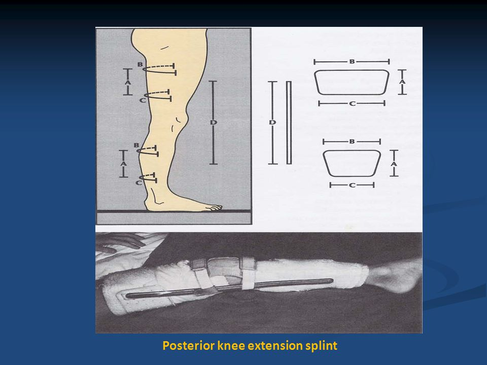 A type of spiral splint looped around upper extremity to promote elbow extension