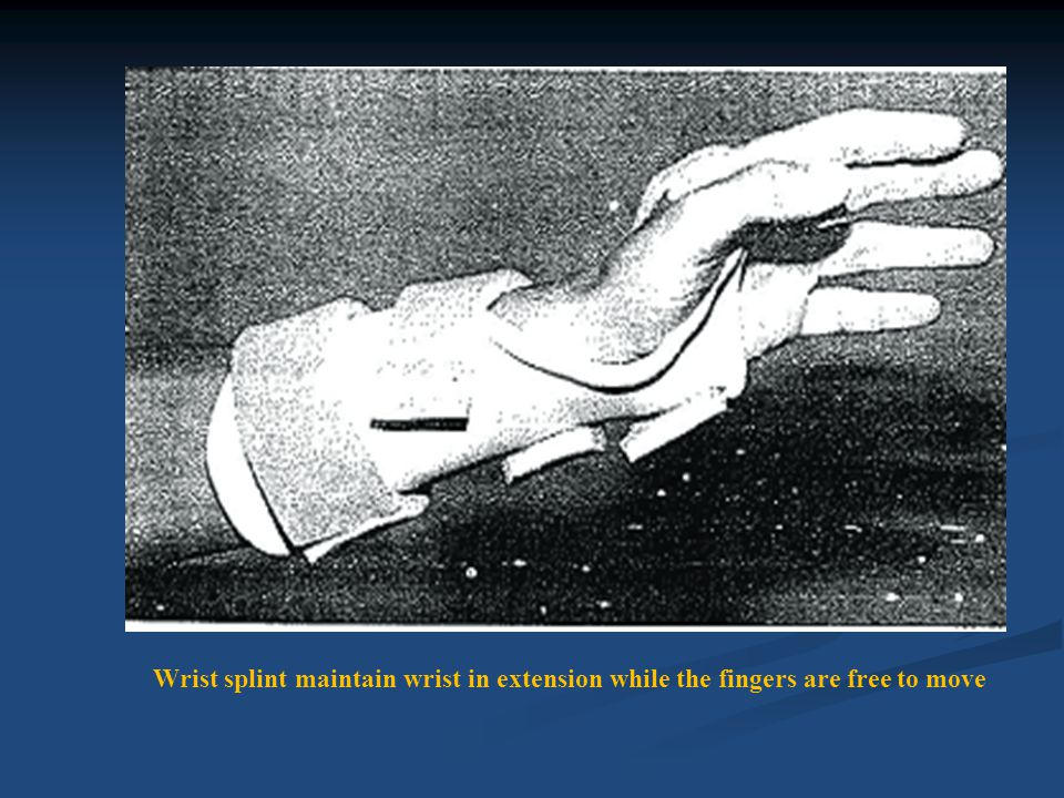 Thumb positioned between palmar and radial abduction with a thumb spica splint.