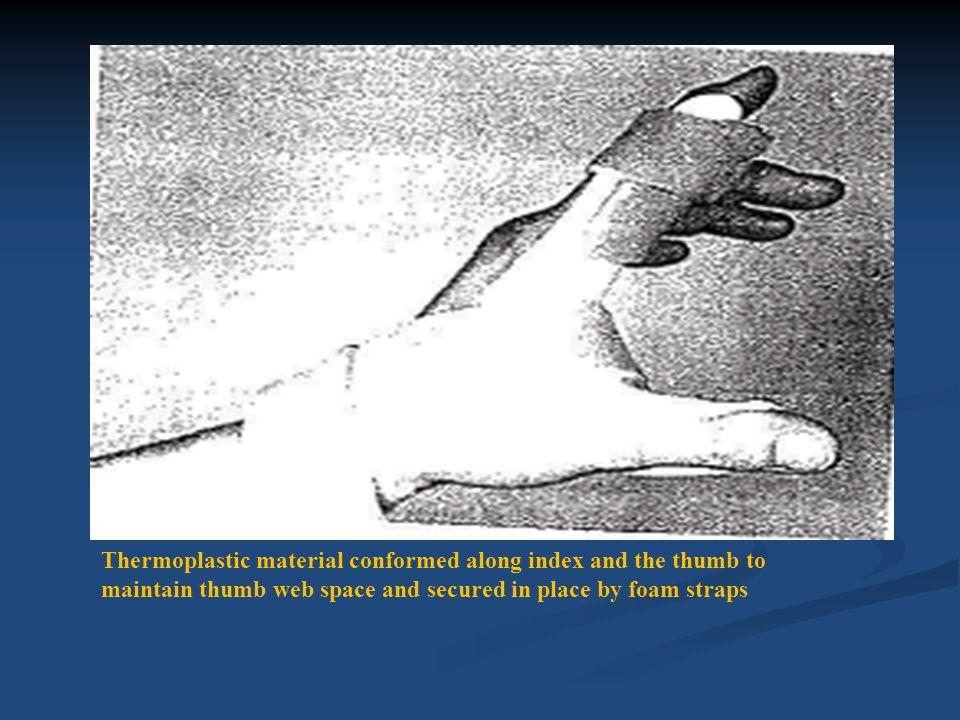 (A) Palmar extension splint for right hand.