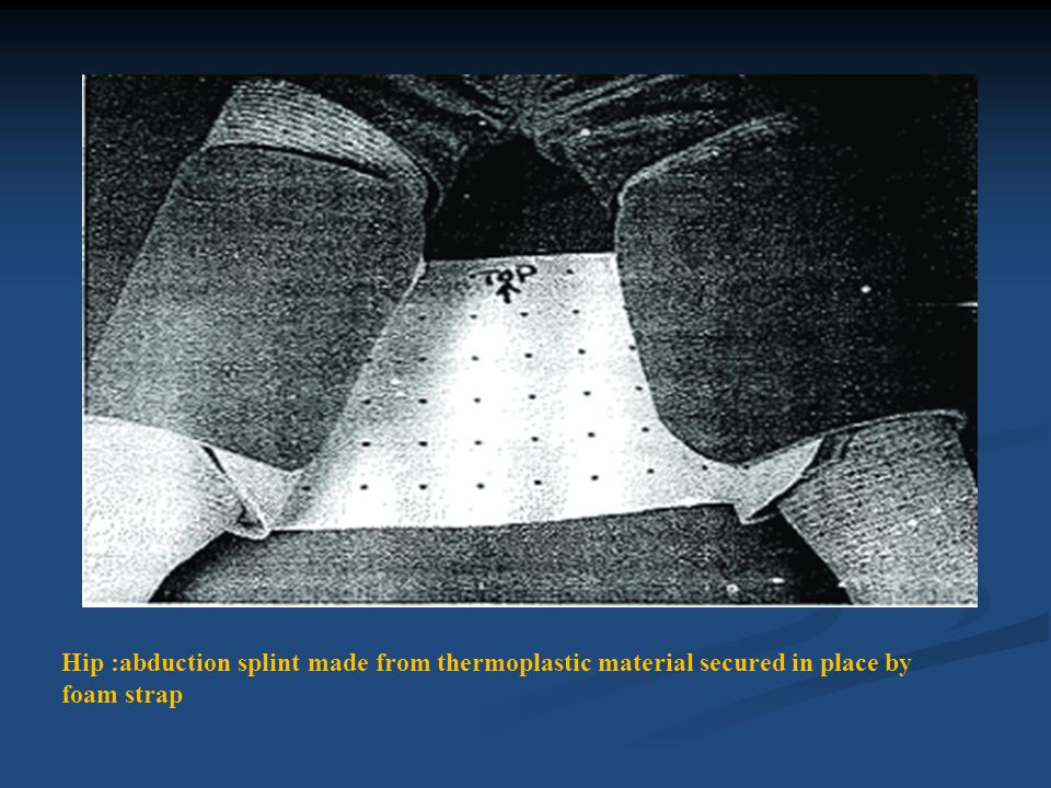 Hip :abduction splint made from thermoplastic material secured in place by foam strap