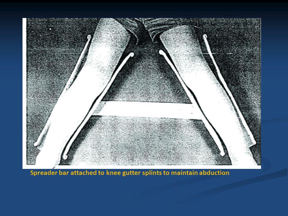 Ankle and Foot region Anticipated deformity: Dorsiflexion; planter flexion Secondary problems: Shortening of Achilles tendon; equinus deformity: altered gait pattern