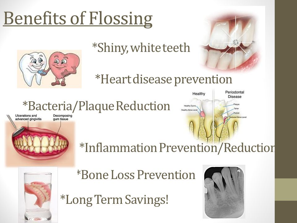 Benefits of Flossing *Shiny, white teeth *Heart disease prevention *Bacteria/Plaque Reduction *Inflammation Prevention/Reduction *Bone Loss Prevention *Long Term Savings!