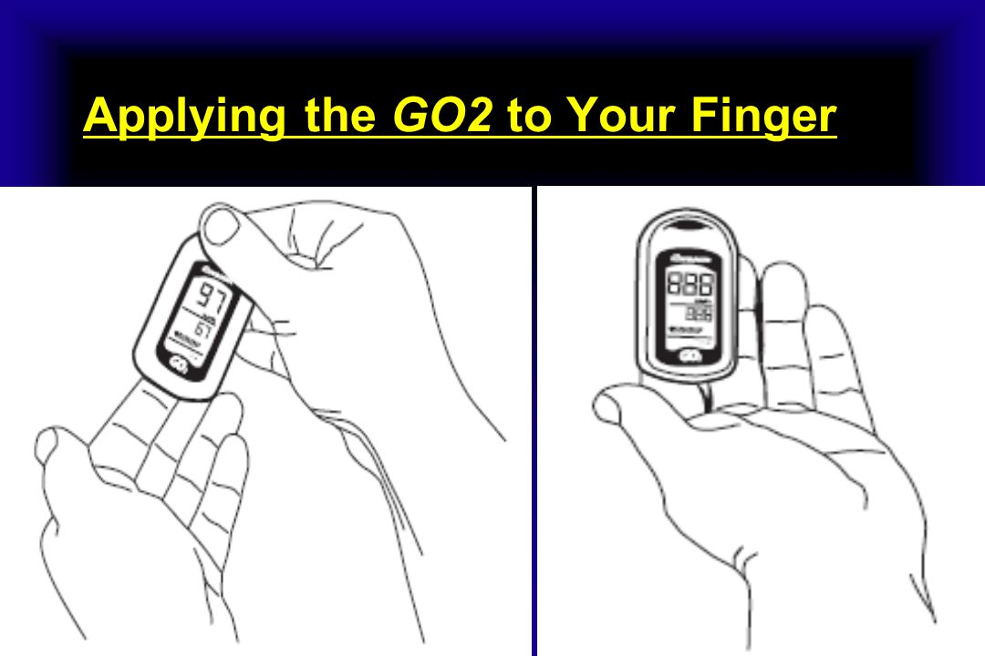 Do not press the GO2 against any surface and do not squeeze or hold it together.