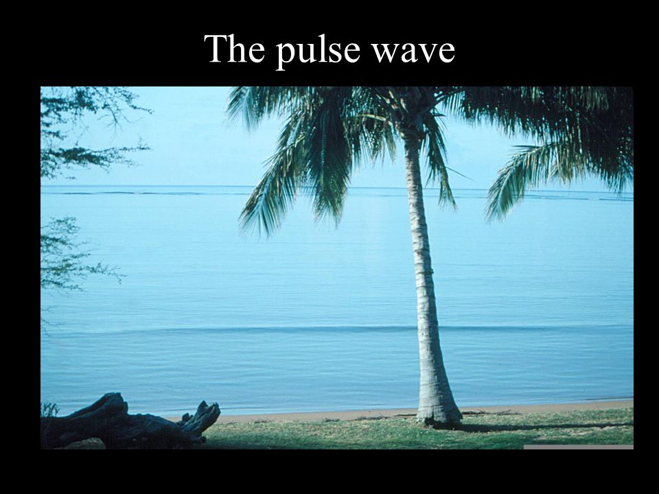 The pulse wave