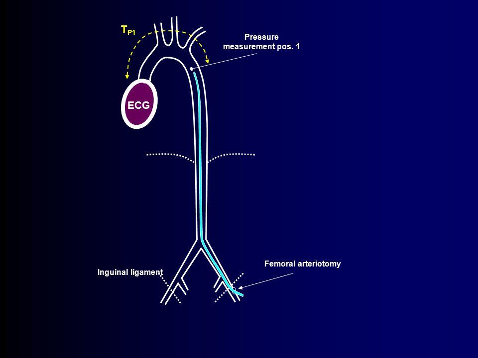 Inguinal ligament ECG T P1 Pressure measurement pos. 1 Femoral arteriotomy