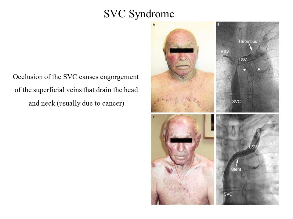 SVC Syndrome Occlusion of the SVC causes engorgement of the superficial veins that drain the head and neck (usually due to cancer)