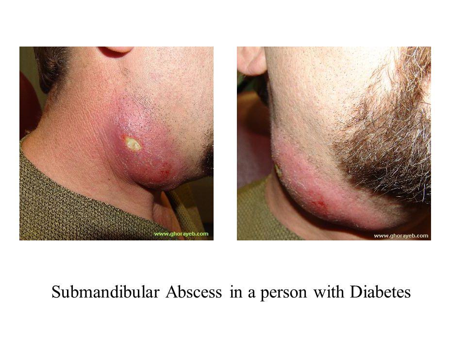 Submandibular Abscess in a person with Diabetes