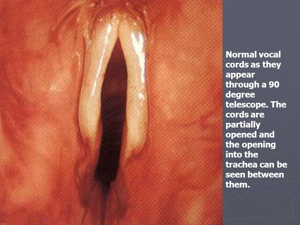 Normal vocal cords as they appear through a 90 degree telescope. The cords are partially opened and the opening into the trachea can be seen between t