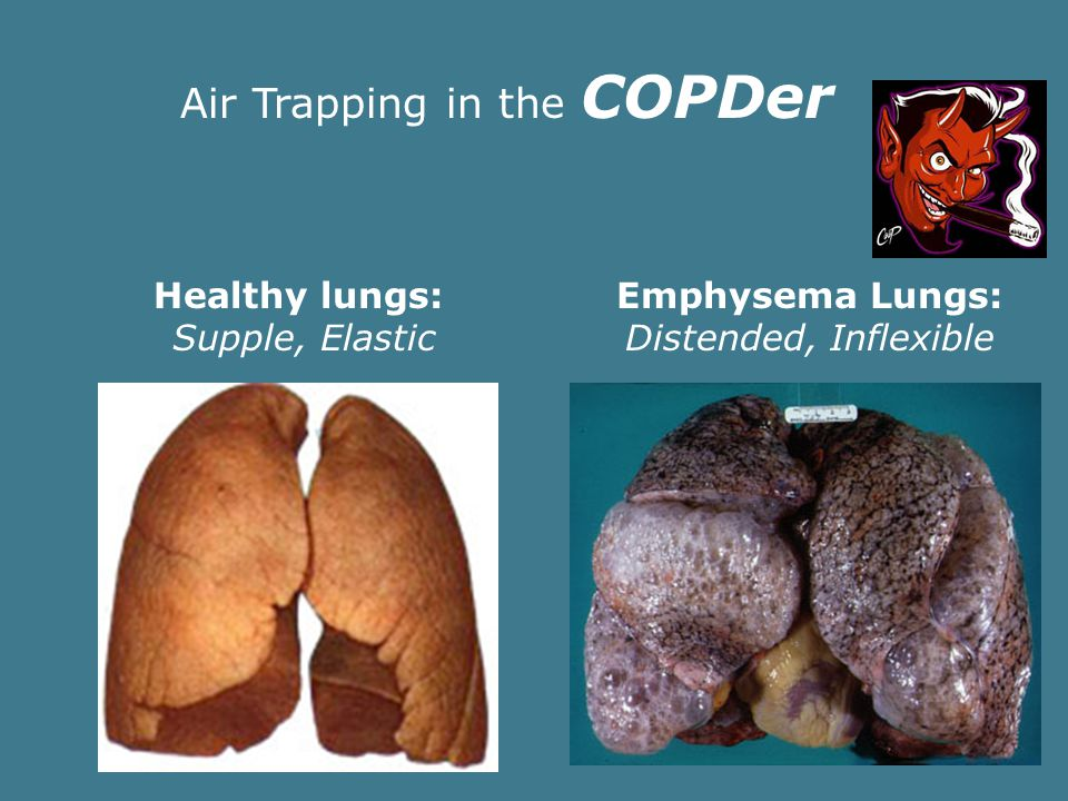 Understanding Air Trapping Bronchospasm leads to an inability to efficiently exhale Increasing ventilatory rate compounds the problem.