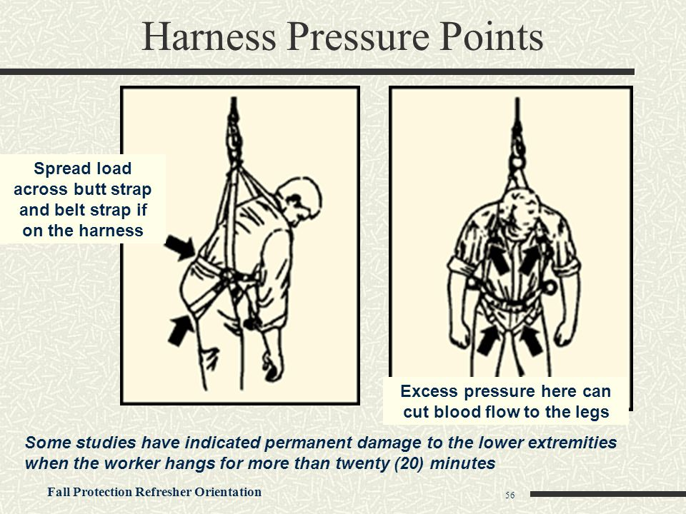 Fall Protection Refresher Orientation 56 Harness Pressure Points Spread load across butt strap and belt strap if on the harness Excess pressure here c