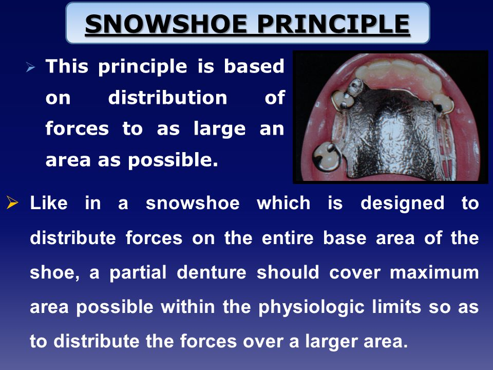  This principle is based on distribution of forces to as large an area as possible.