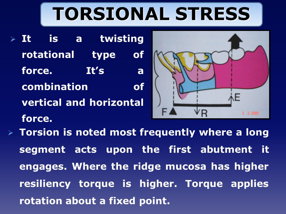  Torsion is noted most frequently where a long segment acts upon the first abutment it engages.