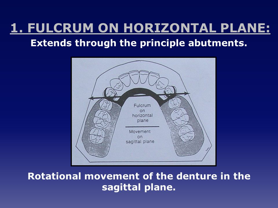 1.FULCRUM ON HORIZONTAL PLANE: Extends through the principle abutments.