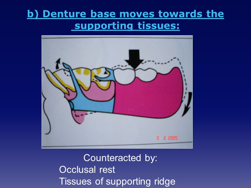 b) Denture base moves towards the supporting tissues: Counteracted by: Occlusal rest Tissues of supporting ridge