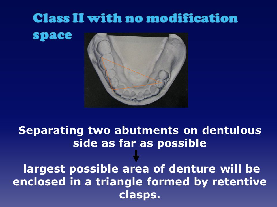 Separating two abutments on dentulous side as far as possible largest possible area of denture will be enclosed in a triangle formed by retentive clasps.