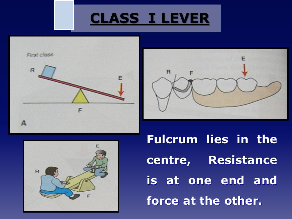 Fulcrum lies in the centre, Resistance is at one end and force at the other. CLASS I LEVER