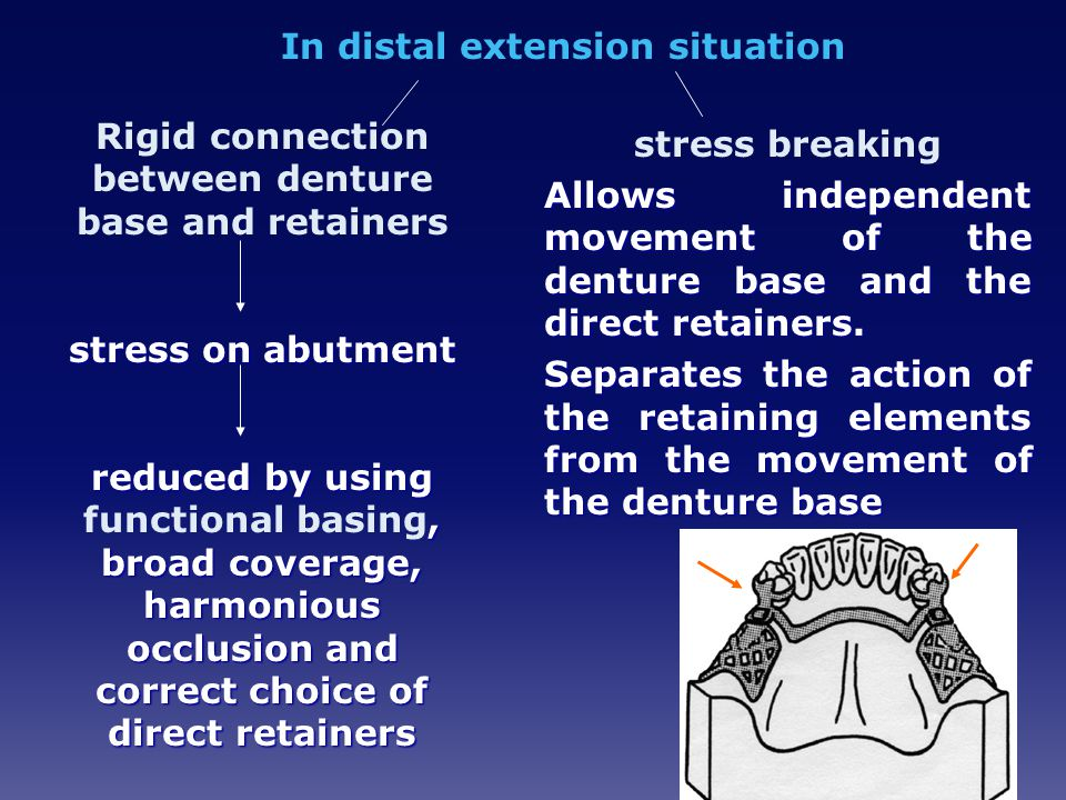 In distal extension situation Rigid connection between denture base and retainers stress on abutment reduced by using, broad coverage, harmonious occlusion and correct choice of direct retainers reduced by using functional basing, broad coverage, harmonious occlusion and correct choice of direct retainers stress breaking Allows independent movement of the denture base and the direct retainers.