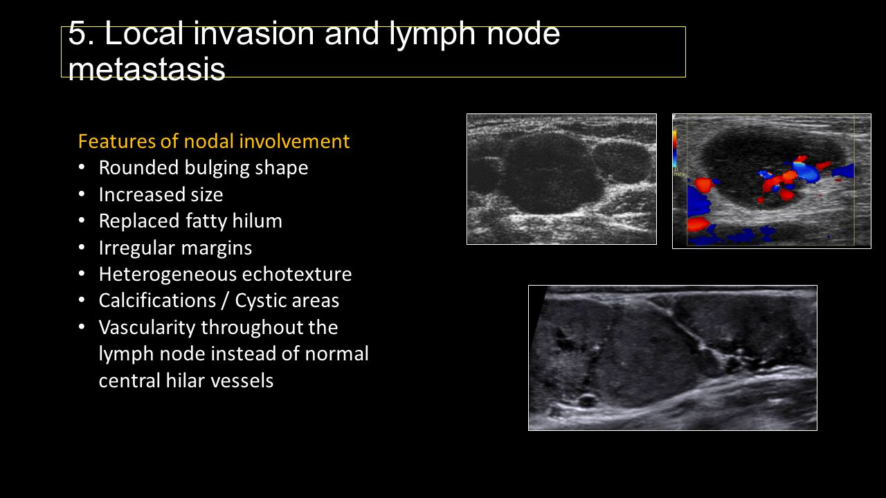 TIRADS - Thyroid image reporting and data system TIRADS 1 - normal thyroid gland TIRADS 2 - benign lesions TIRADS 3 - probably benign lesions TIRADS 4 - suspicious lesions (4a, 4b, and 4c with increasing risk of malignancy) TIRADS 5 - probably malignant lesions (> 80% risk of malignancy) TIRADS 6 - biopsy proven malignancy J Clin Endocrinol Metab.