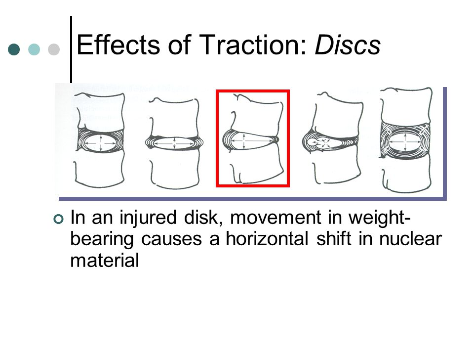 Effects of Traction: Discs In an injured disk, movement in weight- bearing causes a horizontal shift in nuclear material