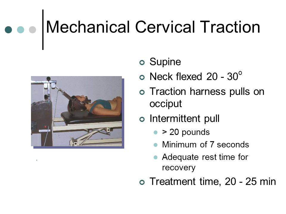 Mechanical Cervical Traction Supine Neck flexed 20 - 30 o Traction harness pulls on occiput Intermittent pull > 20 pounds Minimum of 7 seconds Adequat