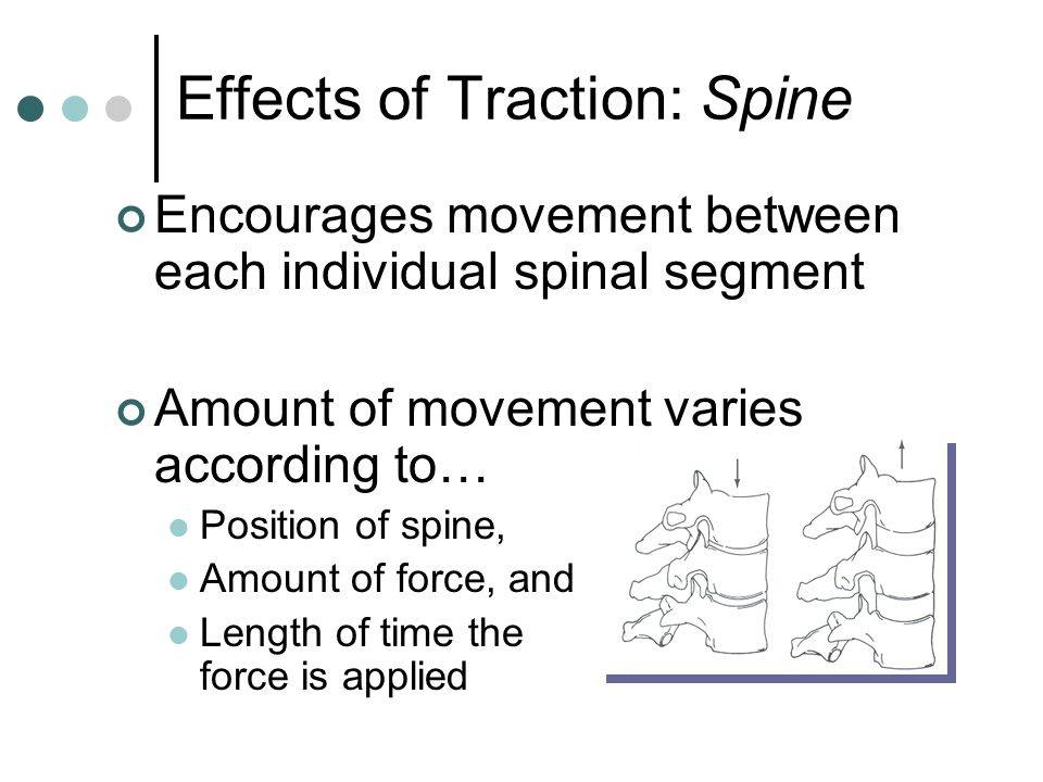 Effects of Traction: Spine Encourages movement between each individual spinal segment Amount of movement varies according to… Position of spine, Amoun