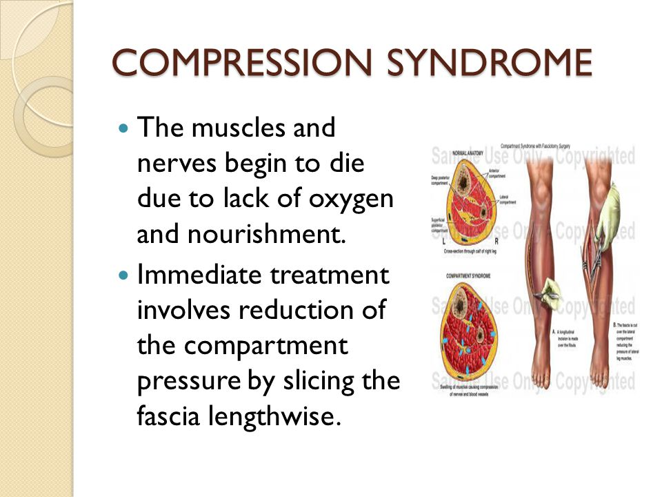 COMPRESSION SYNDROME The muscles and nerves begin to die due to lack of oxygen and nourishment. Immediate treatment involves reduction of the compartm