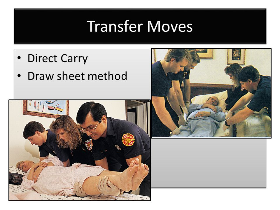 Transfer Moves Direct Carry Draw sheet method Direct Carry Draw sheet method