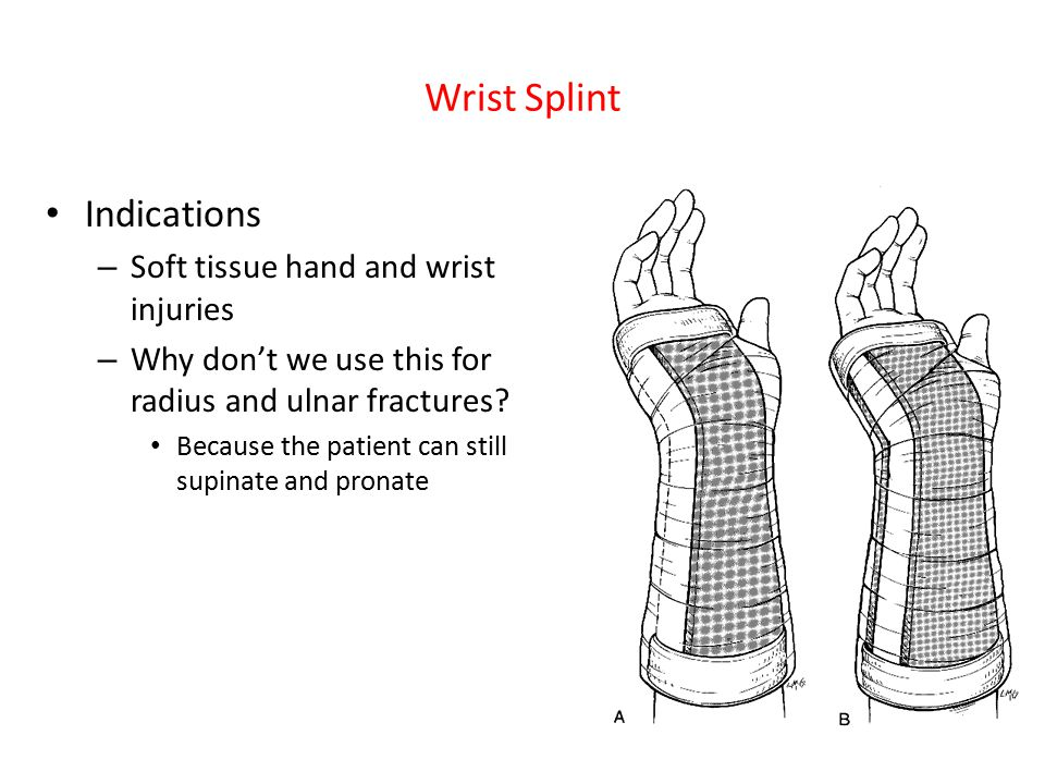 Wrist Splint Indications – Soft tissue hand and wrist injuries – Why don't we use this for radius and ulnar fractures? Because the patient can still s