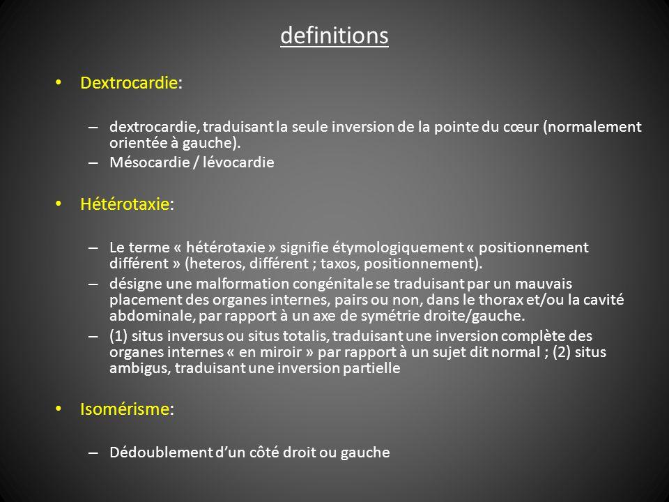 definitions Dextrocardie: – dextrocardie, traduisant la seule inversion de la pointe du cœur (normalement orientée à gauche).